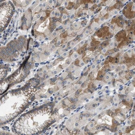 Immunohistochemistry (Formalin/PFA-fixed paraffin-embedded sections) - Anti-CSN2 antibody (ab223764)