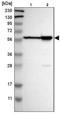 Western blot - Anti-LAP2 antibody (ab223768)