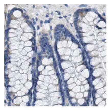 Immunohistochemistry (Formalin/PFA-fixed paraffin-embedded sections) - Anti-Asialoglycoprotein Receptor 1/HL-1 antibody - N-terminal (ab223769)