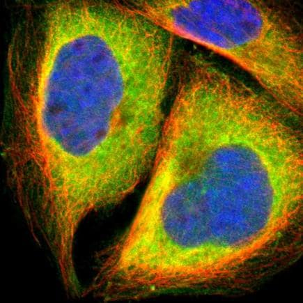 Immunocytochemistry/ Immunofluorescence - Anti-SND1 antibody (ab223770)