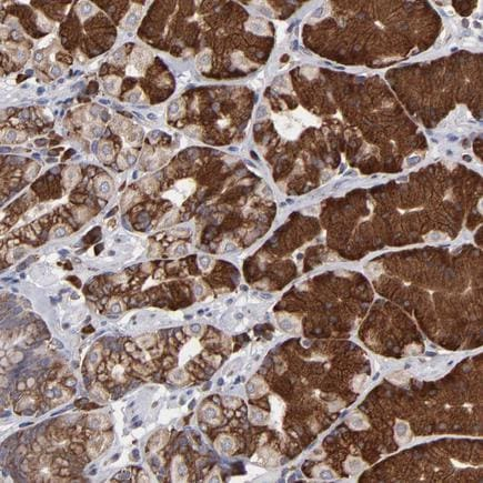 Immunohistochemistry (Formalin/PFA-fixed paraffin-embedded sections) - Anti-SND1 antibody (ab223770)