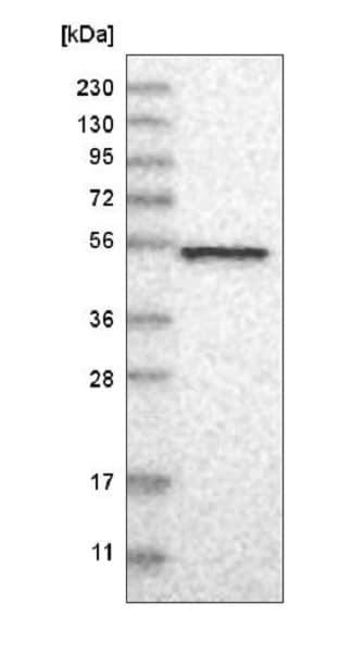 Western blot - Anti-NAPRT1 antibody (ab223775)