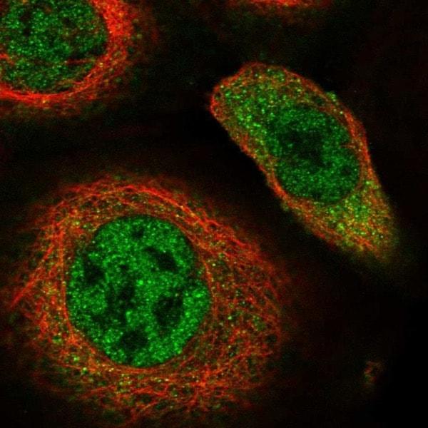 Immunocytochemistry/ Immunofluorescence - Anti-hHR23b antibody (ab223776)