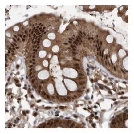 Immunohistochemistry (Formalin/PFA-fixed paraffin-embedded sections) - Anti-hHR23b antibody (ab223776)