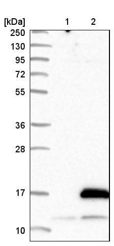Western blot - Anti-ATPase Inhibitory Factor 1/IF1 antibody (ab223779)