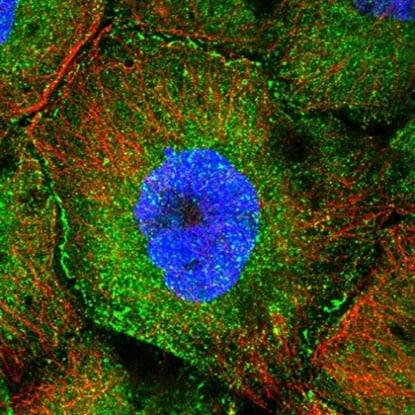 Immunocytochemistry/ Immunofluorescence - Anti-CCDC8 antibody (ab223784)
