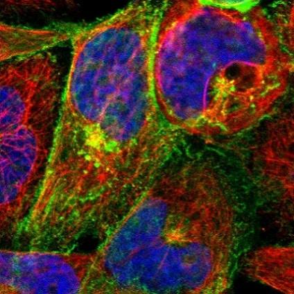 Immunocytochemistry/ Immunofluorescence - Anti-Calcium Pump PMCA3 ATPase antibody (ab223787)
