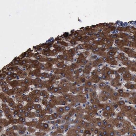 Immunohistochemistry (Formalin/PFA-fixed paraffin-embedded sections) - Anti-PYGL antibody (ab223788)