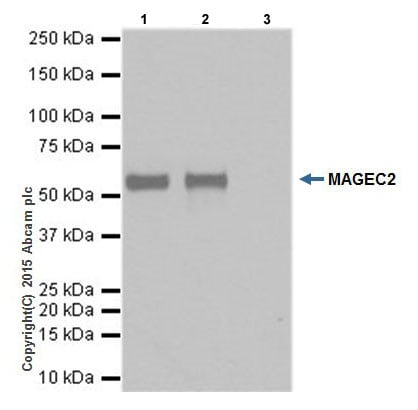 Immunoprecipitation - Anti-MAGEC2 antibody [EPR19064] - BSA and Azide free (ab223794)