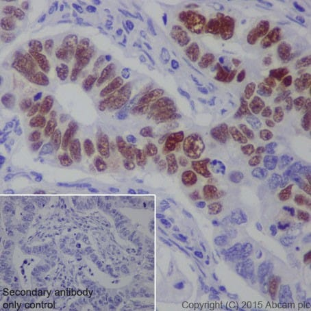 Immunohistochemistry (Formalin/PFA-fixed paraffin-embedded sections) - Anti-MAGEC2 antibody [EPR19064] - BSA and Azide free (ab223794)
