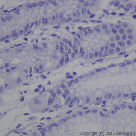 Immunohistochemistry (Formalin/PFA-fixed paraffin-embedded sections) - Anti-MAGEC2 antibody [EPR19064] - BSA and Azide free (ab223794)