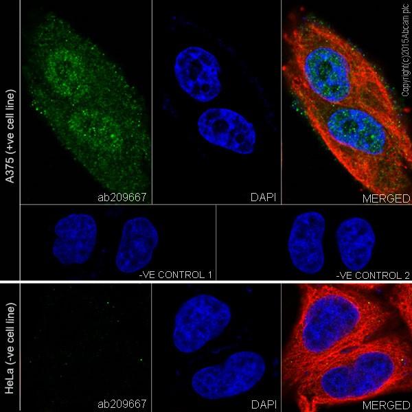 Immunocytochemistry/ Immunofluorescence - Anti-MAGEC2 antibody [EPR19064] - BSA and Azide free (ab223794)