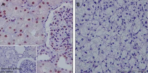 Immunohistochemistry (Formalin/PFA-fixed paraffin-embedded sections) - Anti-HRPT2/Parafibromin antibody [EPR19927] (ab223840)