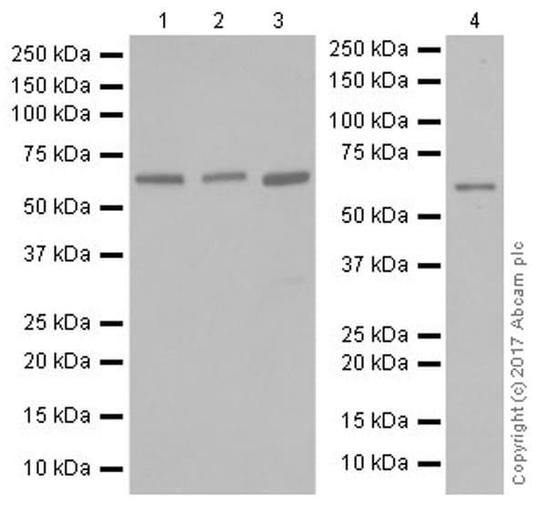 Western blot - Anti-HRPT2/Parafibromin antibody [EPR19927] (ab223840)