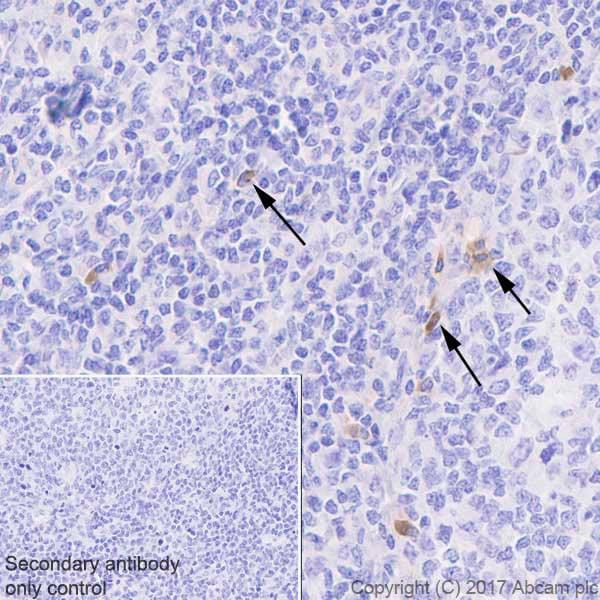 Immunohistochemistry (Formalin/PFA-fixed paraffin-embedded sections) - Anti-GITR antibody [EPR20566] (ab223841)