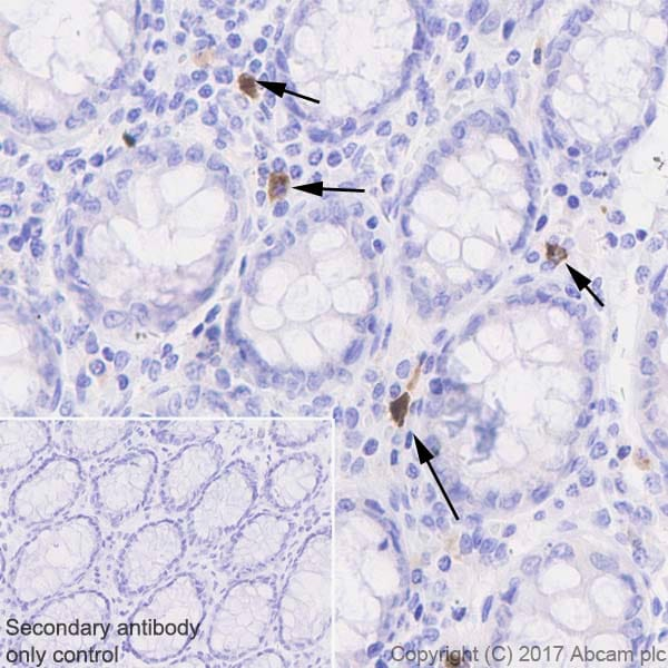 Immunohistochemistry (Formalin/PFA-fixed paraffin-embedded sections) - Anti-GITR antibody [EPR20566] (ab223841)