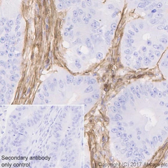 Immunohistochemistry (Formalin/PFA-fixed paraffin-embedded sections) - Anti-CD39 antibody [EPR20627] (ab223842)