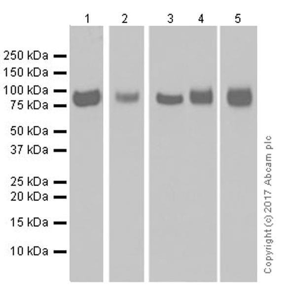 Western blot - Anti-CD39 antibody [EPR20627] (ab223842)