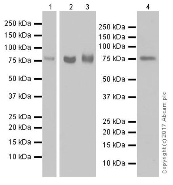 Western blot - Anti-CD39 antibody [EPR20461] (ab223843)