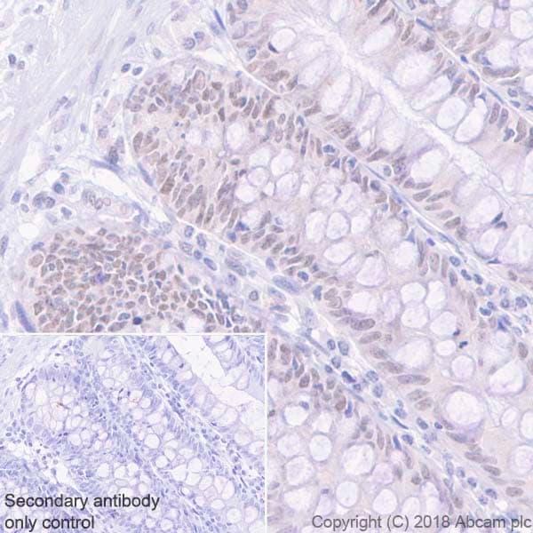 Immunohistochemistry (Formalin/PFA-fixed paraffin-embedded sections) - Anti-MLH1 antibody [EPR20522] (ab223844)