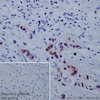 Immunohistochemistry (Formalin/PFA-fixed paraffin-embedded sections) - Anti-Annexin A10 + Annexin A11 antibody [EPR19442] (ab223848)