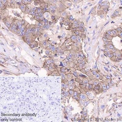 Immunohistochemistry (Formalin/PFA-fixed paraffin-embedded sections) - Anti-ENT1 antibody [EPR20556] (ab223851)