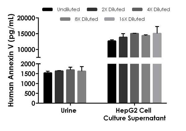 Interpolated concentrations of native Annexin V in human urine and HepG2 cell culture supernatant (5 days) samples.