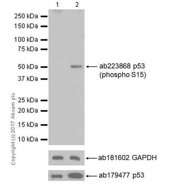 Western blot - Anti-p53 (phospho S15) antibody [EPR64(N)] - ChIP Grade (ab223868)