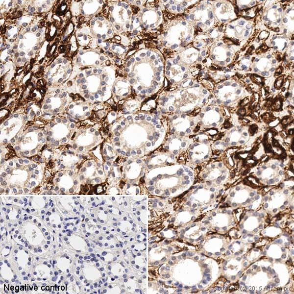 Immunohistochemistry (Formalin/PFA-fixed paraffin-embedded sections) - Anti-Vimentin antibody [V9] - BSA and Azide free (ab223871)