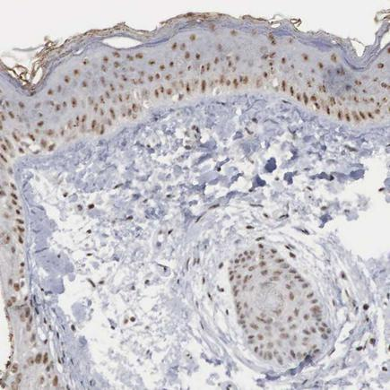 Immunohistochemistry (Formalin/PFA-fixed paraffin-embedded sections) - Anti-AUTS2 antibody (ab224035)