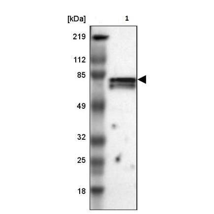 Western blot - Anti-CCDC22/JM1 antibody (ab224038)