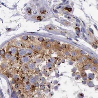 Immunohistochemistry (Formalin/PFA-fixed paraffin-embedded sections) - Anti-GOLGA5/Golgin-84 antibody (ab224040)