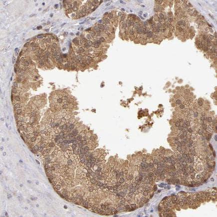 Immunohistochemistry (Formalin/PFA-fixed paraffin-embedded sections) - Anti-MST antibody (ab224043)