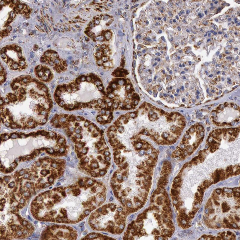 Immunohistochemistry - Anti-CYC1 antibody (ab224044)