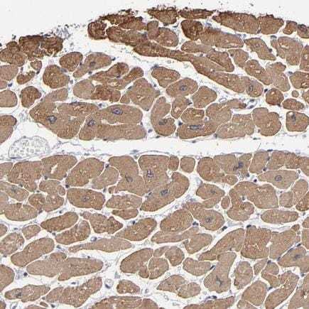 Immunohistochemistry (Formalin/PFA-fixed paraffin-embedded sections) - Anti-CCDC80 antibody (ab224050)