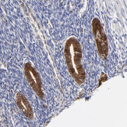 Immunohistochemistry (Formalin/PFA-fixed paraffin-embedded sections) - Anti-XTP3TPA antibody (ab224051)