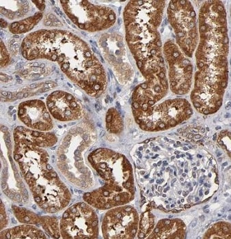 Immunohistochemistry (Formalin/PFA-fixed paraffin-embedded sections) - Anti-PGRMC1 antibody (ab224054)
