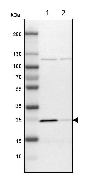 Western blot - Anti-PGRMC1 antibody (ab224054)
