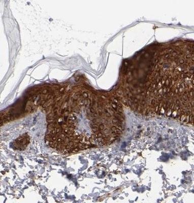 Immunohistochemistry (Formalin/PFA-fixed paraffin-embedded sections) - Anti-AHNAK2 antibody (ab224055)