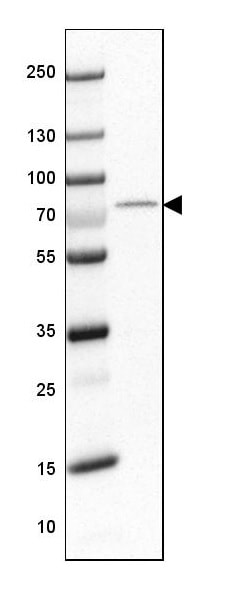 Western blot - Anti-OGFOD1/TPA1 antibody (ab224056)