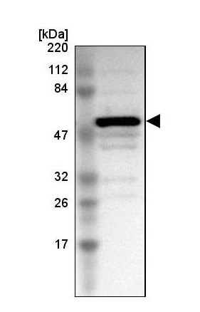 Western blot - Anti-TRIM22 antibody (ab224059)