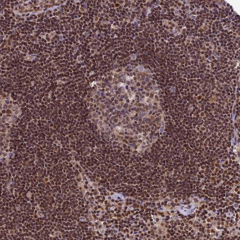 Immunohistochemistry (Formalin/PFA-fixed paraffin-embedded sections) - Anti-TRIM22 antibody (ab224059)