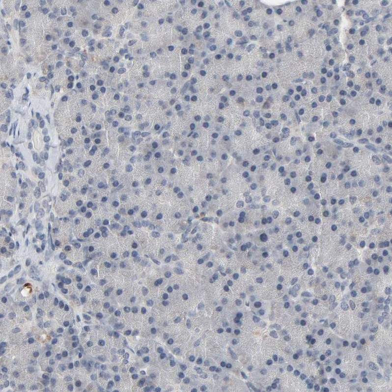 Immunohistochemistry (Formalin/PFA-fixed paraffin-embedded sections) - Anti-MT3 antibody (ab224060)