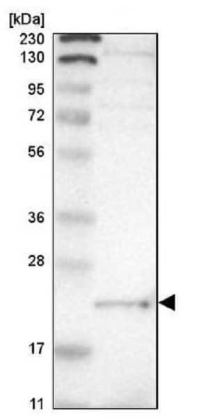 Western blot - Anti-Tbx1 antibody (ab224066)