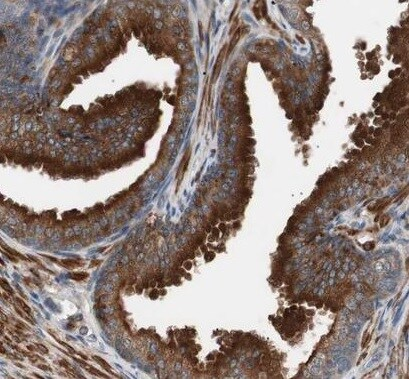Immunohistochemistry (Formalin/PFA-fixed paraffin-embedded sections) - Anti-Tbx1 antibody (ab224066)