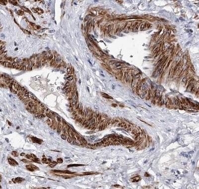 Immunohistochemistry (Formalin/PFA-fixed paraffin-embedded sections) - Anti-SPOCK1 antibody (ab224071)