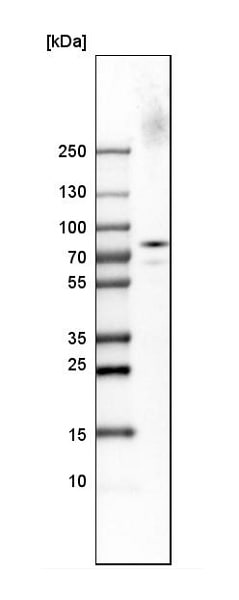 Western blot - Anti-SV2A antibody (ab224073)