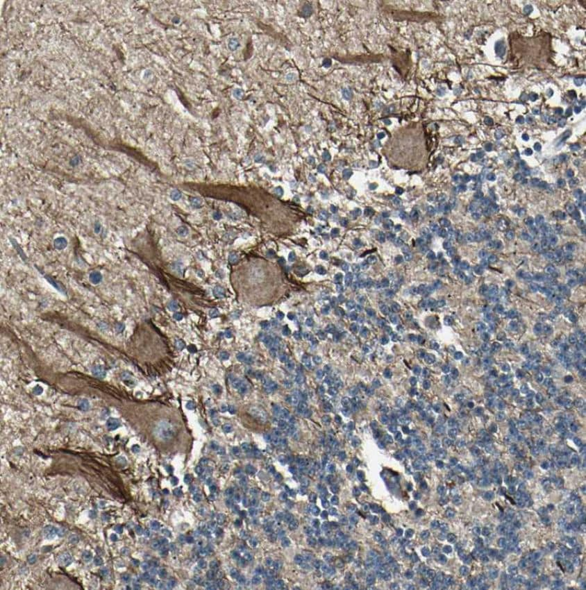 Immunohistochemistry (Formalin/PFA-fixed paraffin-embedded sections) - Anti-NUAK2 antibody (ab224079)