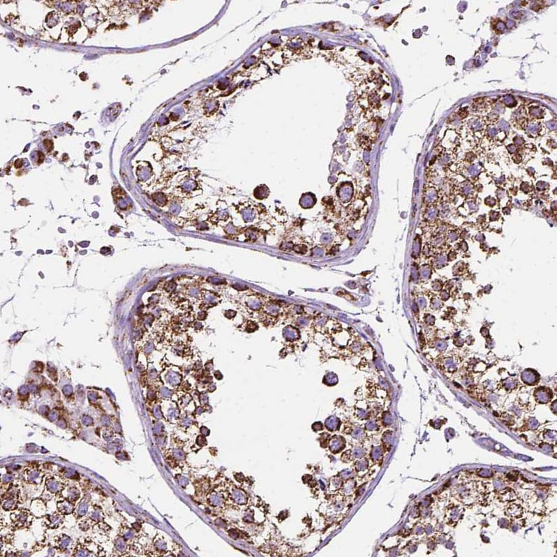 Immunohistochemistry (Formalin/PFA-fixed paraffin-embedded sections) - Anti-PTPIP51 antibody (ab224081)