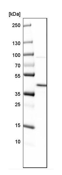 Western blot - Anti-FCGRT/FCRN antibody (ab224087)
